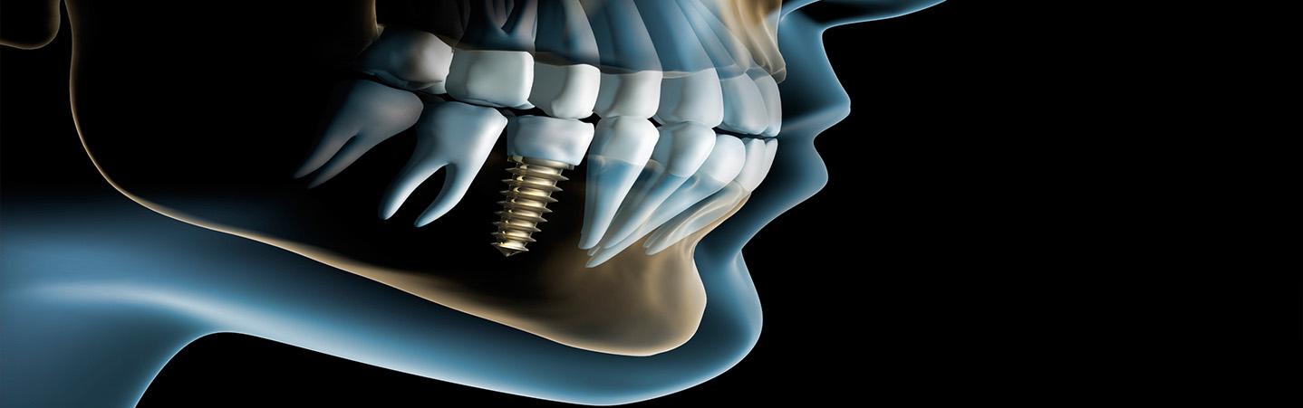 Эксклюзивная система ортодонтического лечения