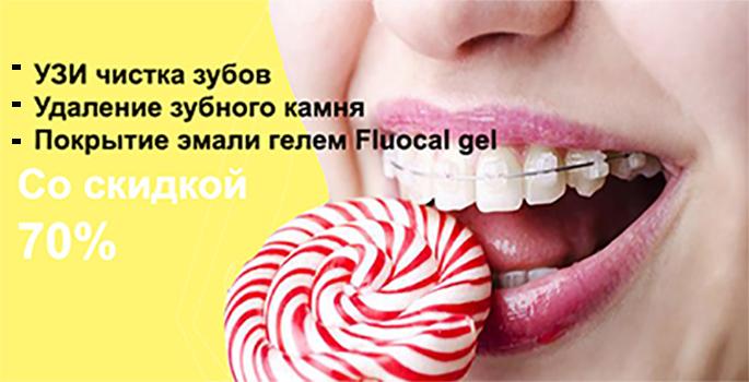 УЗИ чистка от налета и зубного камня и покрытие гелем со скидкой до 70%!