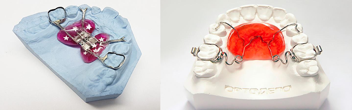 Аппарат Хааса для коррекции дефектов верхней челюсти в молочном и сменном прикусе
