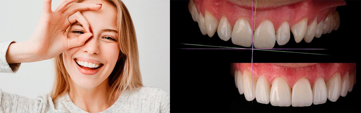 Цифровой дизайн улыбки. Современная стоматология.