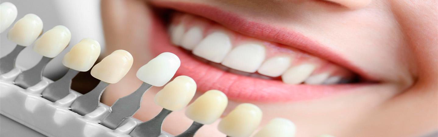 Протезирование зубов. Виды ортопедических конструкций.