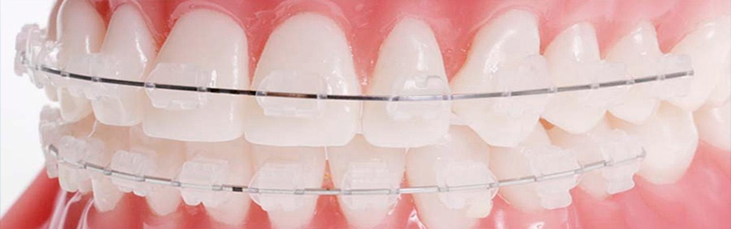 Как исправить прикус у взрослого. Выбор ортодонтической системы.