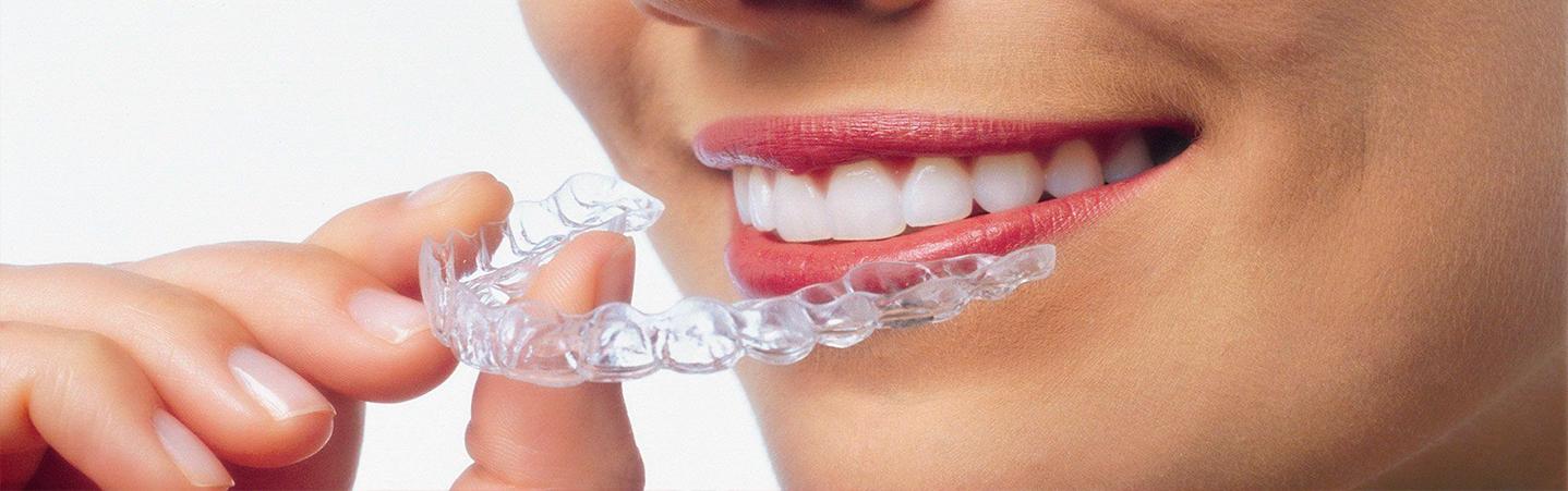 Элайнеры для выравнивания зубов.