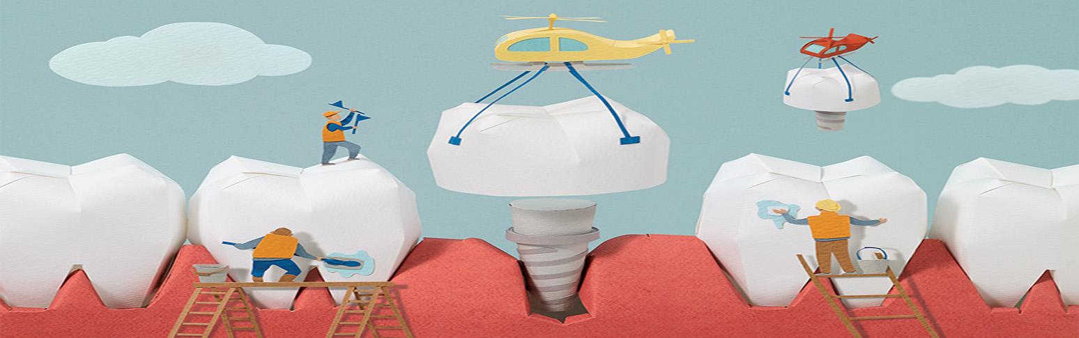 Надо ли удалять зубы перед фиксацией брекетов?
