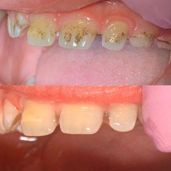 профессиональная гигиена полости рта: чистка ультразвуковым скеллером,полировка пастой,реминерализация. --