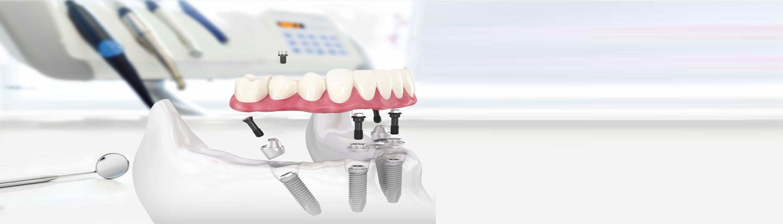Мы восстанавливаем зубной ряд за 1 день
