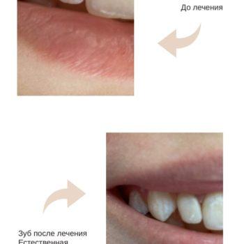 Лечение глубокого кариеса Ортодонт Премьер
