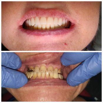Тотальная имплантация и протезирование верхней и нижней челюсти.