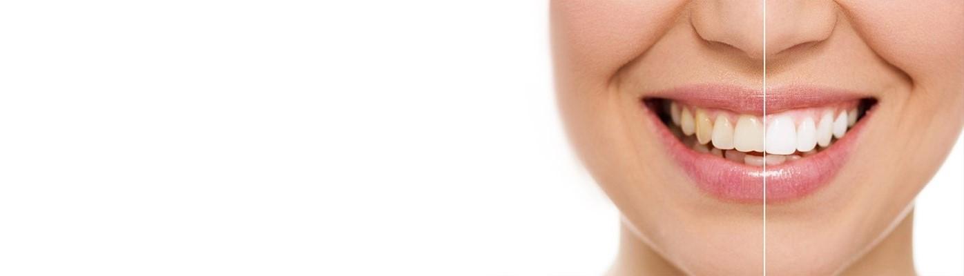 Отбеливание ZOON+ чистка зубов со скидкой 5900 руб!